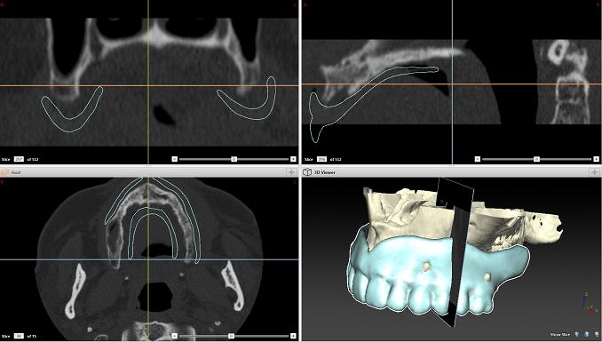 DVT - Digitales Volumentomogramm: Bis zu 400 einzelne Röntgenschichtaufnahmen ermöglichen eine dreidimensionale Diagnostik der anatomischen Strukturen des Schädels und dienen als Grundlage für die präzise und sichere 3D-Implantatplanung.