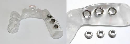 Oberkiefer-Bohrschablone für 3 Implantate