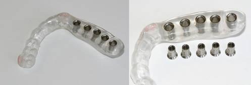 Unterkiefer-Bohrschablone für 5 Implantate