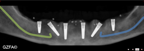 Versorgung des Unterkiefers mit sechs Implantaten nach 3D-Implantatplanung.