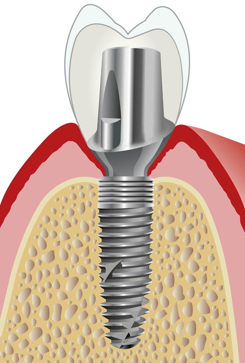 Individuelle Implantatprothetik mit Platform Switch für BEGO Semados® RS/RSX-Implantate.