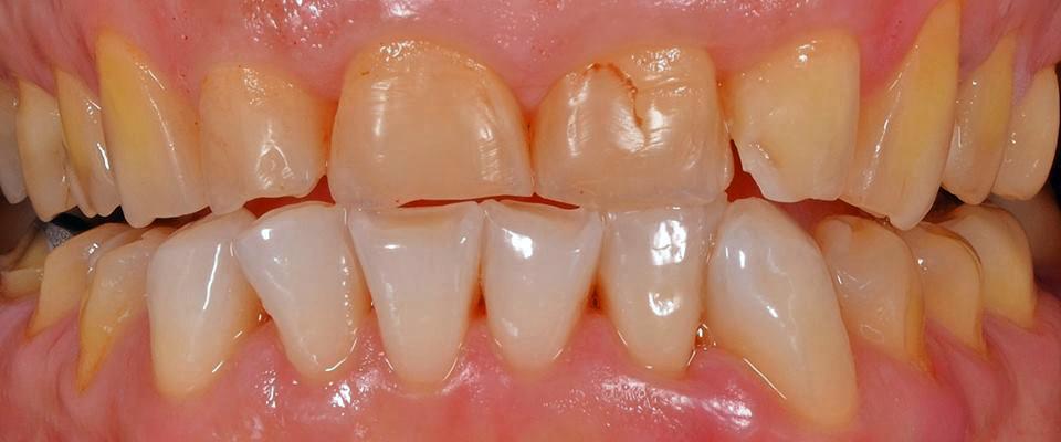 Abrasionsgebiss – schwere Schädigungen der Zähne durch Bruxismus.